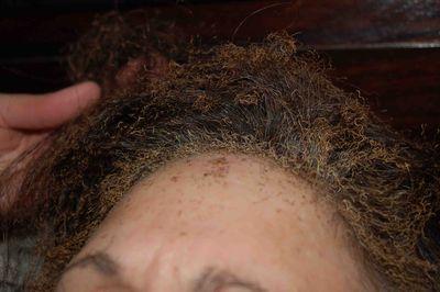 Hairburned